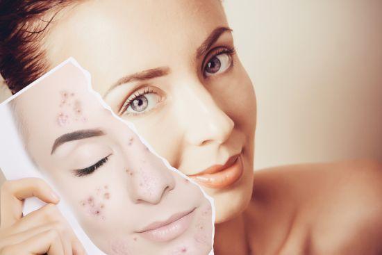 Cauzele acneei la adulti